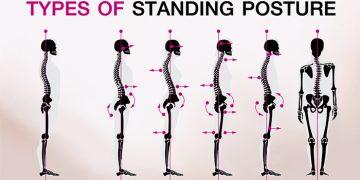 Why You Should Correct Your Posture