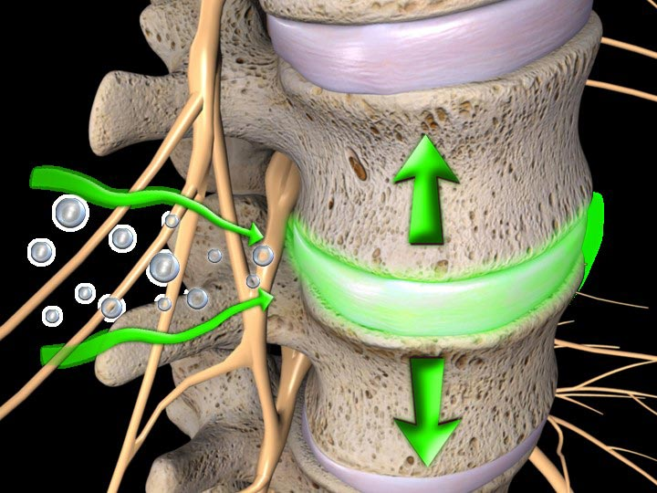 Chiropractic and Spinal Decompression Therapy